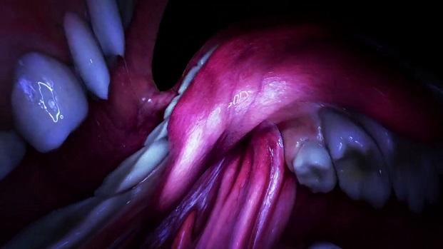 interior de la boca de Björk